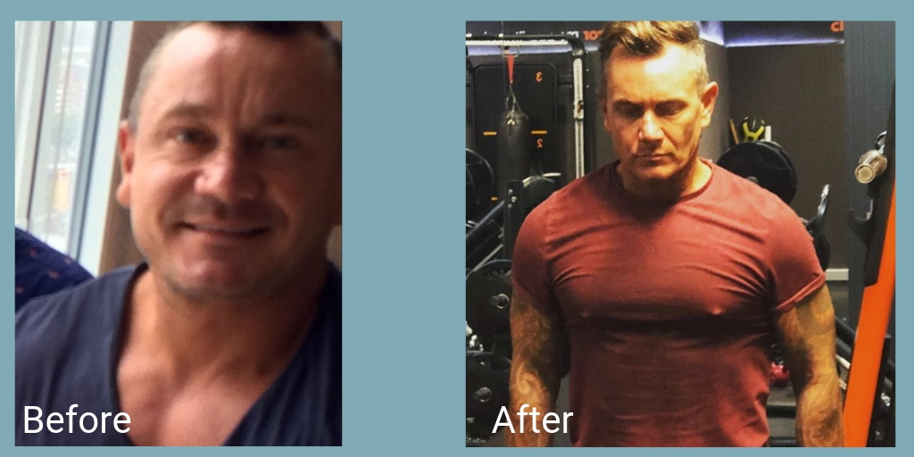 before and after mens health nightingale hospital anxiety inspiration